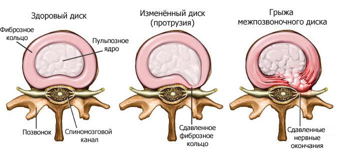 Боль в спине при движении после удара