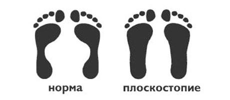ploskostopie(1)