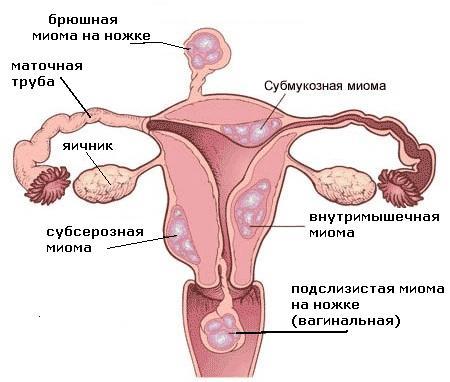 Миома (фибромиома, фиброма, лейомиома), Клиника Стариша