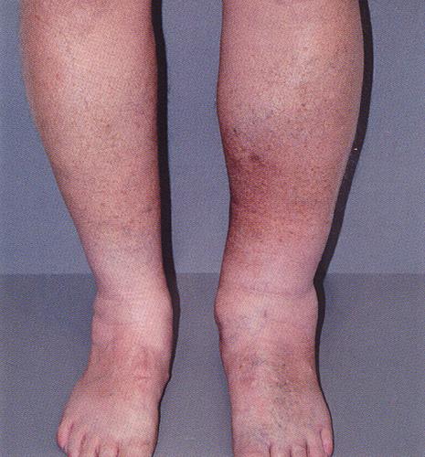 Лечение варикоза конским каштаном
