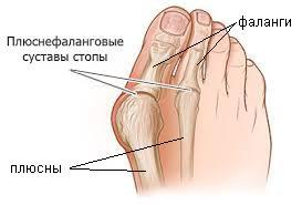 плюснефаланговые суставы