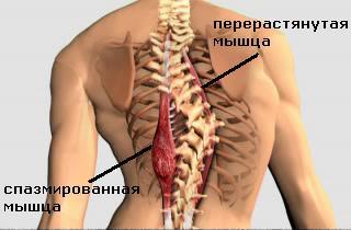 мышцы при сколиозе