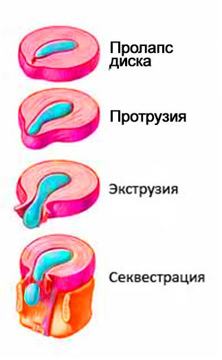 все-печали-с-диском (3)